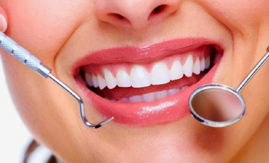 Ini Dia Cara yang Benar Menjaga Kesehatan Gigi dan Rongga Mulut